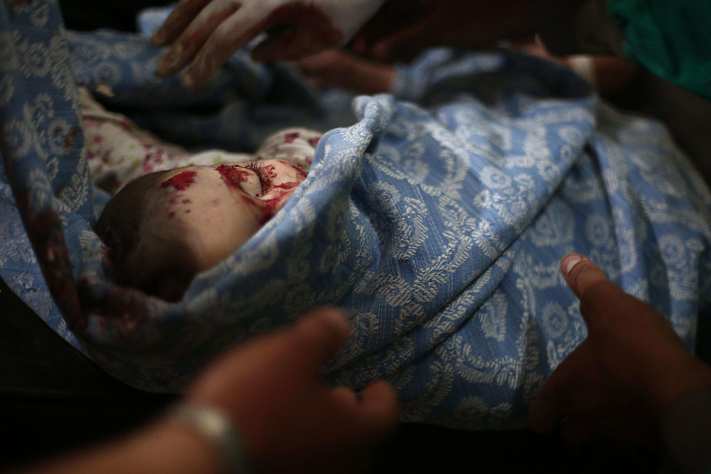 . The body of a boy lies wrapped in shrouds at a makeshift hospital in the besieged rebel bastion of Douma, northeast of the Syrian capital Damascus, on September 24, 2014, following reported airstrikes by government forces. ABD DOUMANY/AFP/Getty Images