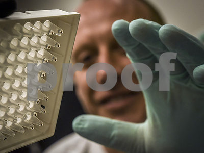 how-biomedical-detectives-identified-the-superbug-e-coli-with-mcr1-gene-in-usa