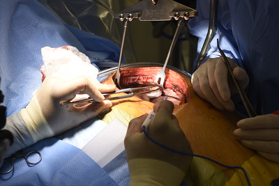 CORONARY ARTERY BYPASS GRAFT II