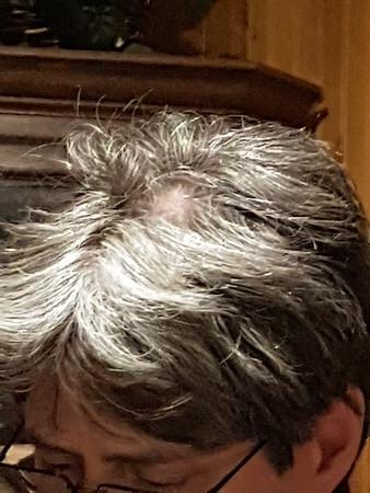 2017-02-09 Shannons Hair-Bald spot look