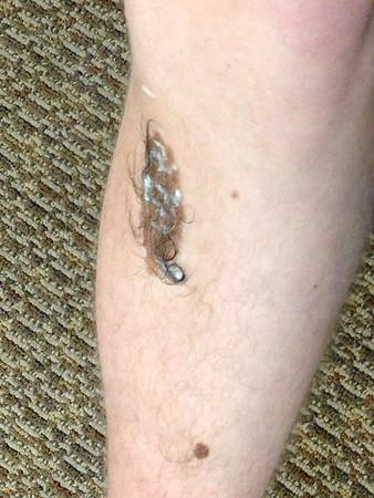 Lucas's birthmark removal!