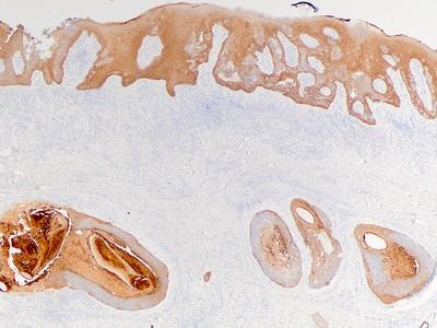 Penile SCC DP17-13894