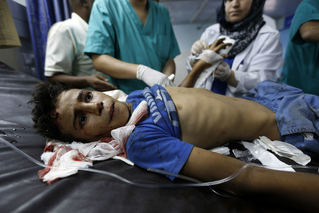 . A wounded boy from the Bakr family, receives treatment at al-Shifa hospital, in Gaza City, on July 16, 2014. Four children were killed and several injured at a beach in Gaza City medics said, in Israeli shelling witnessed by AFP journalists. The strikes appeared to be the result of shelling by the Israeli navy against an area with small shacks used by fishermen. The deaths raised the overall toll in nine days of violence in Gaza to 213. AFP PHOTO/MOHAMMED ABED/AFP/Getty Images