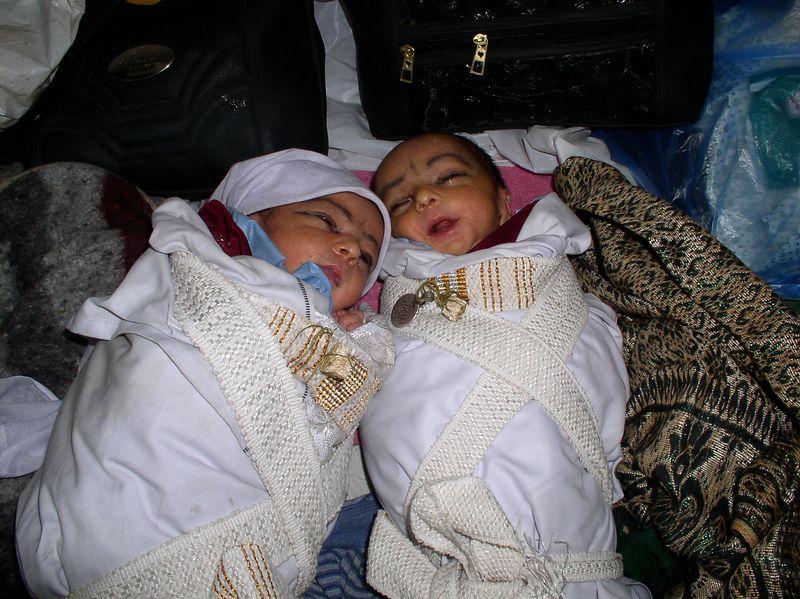 The jaundiced twins.