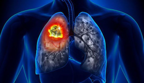 29347945 - lung cancer - tumor detail