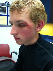 Zach - Battlefield Lacrosse