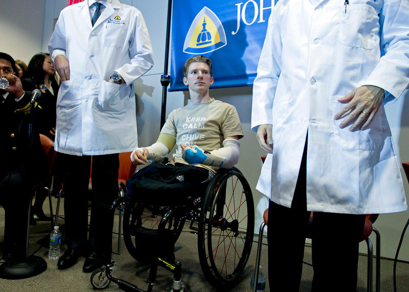 . U.S. Army Sgt. Brendan Marrocco of Staten Island, New York, who lost his four limbs in a 2009 roadside bomb attack in Iraq, attends a news conference after receiving double arm transplants, performed by a Hopkins medical team at The John Hopkins Hospital, in Baltimore, Maryland January 29, 2013. REUTERS/Jose Luis Magana