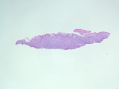 Melanoma tumor board