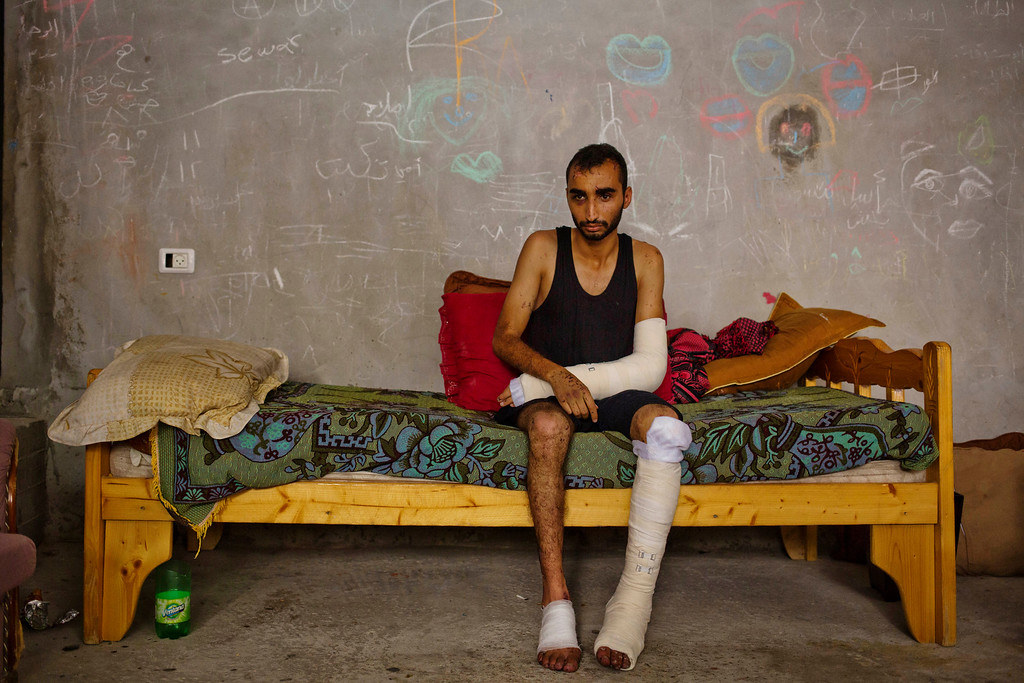 . In this photo made on Wednesday, Aug 6, 2014, Shaker Abu Shawqah, wounded during a shelling in Nusseirat refugee camp in his legs and arm, rests in a basement of a building in Gaza City. More than 9,000 Palestinians, the majority of them civilians and nearly a third among them children, have been wounded in the month long Gaza war. (AP Photo/Dusan Vranic)