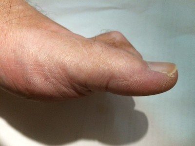 Hammer Toe right foot