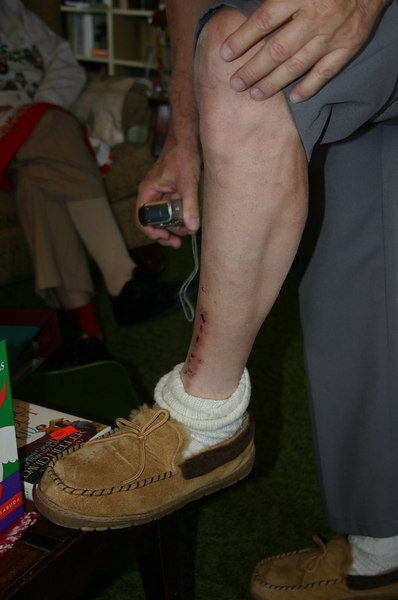 dad/bob's leg injury