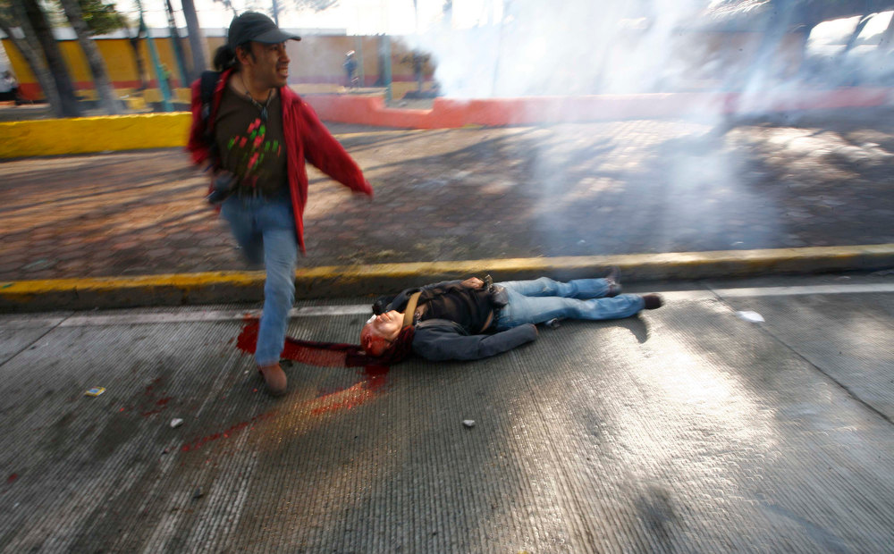 . A protestor lies bleeding from his head after he was hit with a tear gas canister shot by riot police during protests against new Mexican President Enrique Pena Nieto\'s rule, outside the National Congress, in Mexico City, Saturday, Dec. 1, 2012.  Hundreds of protesters banged on the steel security barriers around Congress, threw rocks, bottle rockets and firecrackers at police.  Pena Nieto took power at midnight in a symbolic ceremony and will formally take the oath of office Saturday morning. (AP Photo/Marco Ugarte)