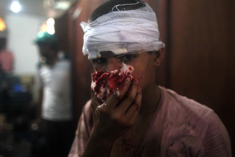 . An injured Egyptian youth is seen at a makeshift hospital during clashes between supporters of Egypt\'s ousted president Mohamed Morsi and police in Cairo on August 14, 2013, as security forces backed by bulldozers moved in on two huge pro-Morsi protest camps, launching a long-threatened crackdown that left dozens dead. The clearance operation began shortly after dawn when security forces surrounded the sprawling Rabaa al-Adawiya camp in east Cairo and a similar one at Al-Nahda square, in the centre of the capital. MOSAAB EL-SHAMY/AFP/Getty Images