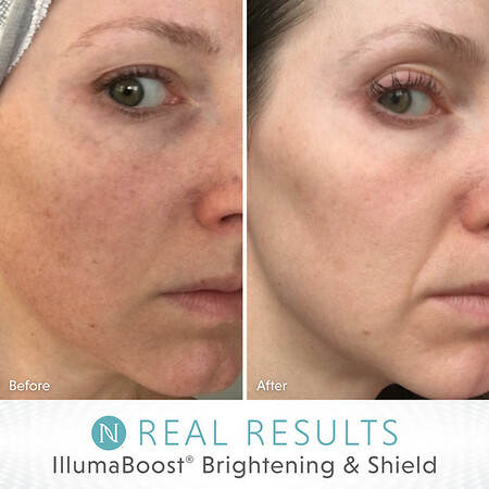 IllumaBoost® Brightening & Shield
