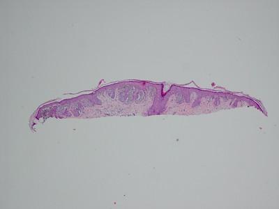 Spitzoid lesions miR-211
