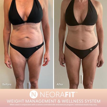 NeoraFit™ Weight Management and Wellness Set