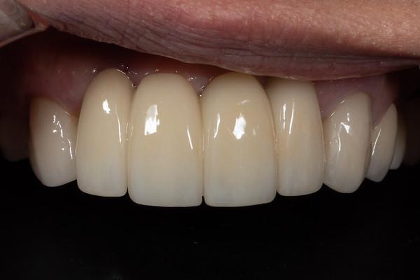 DR Zirconia implant bridge