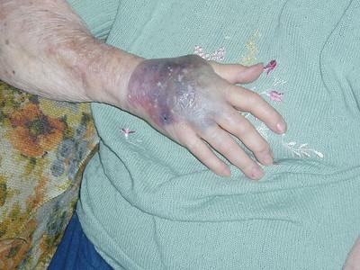 Moms new hand problem 05