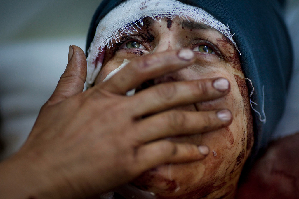 . World Press Photo 1st prize General News Single by Rodrigo Abd, Argentina, for The Associated Press, Aida cries while recovering from severe injuries she received when her house was shelled by the Syrian Army. Her husband and two children were fatally wounded during the shelling in Idib, north Syria, March 10, 2012. (AP Photo/Rodrigo Abd)