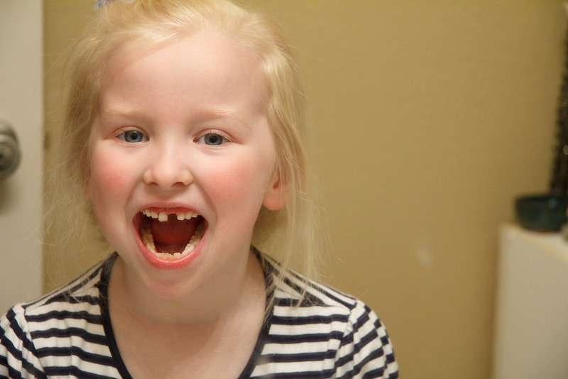 Friday, February 17th, 2012 - Chloe lost her first top tooth - and the other one was nearly ready!