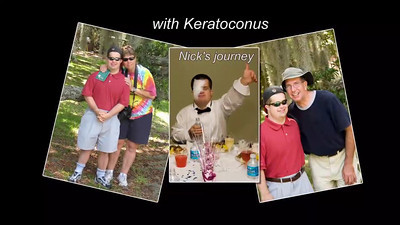 Nick's Journey with keratoconus