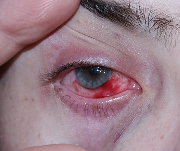 cornea transplant 2006