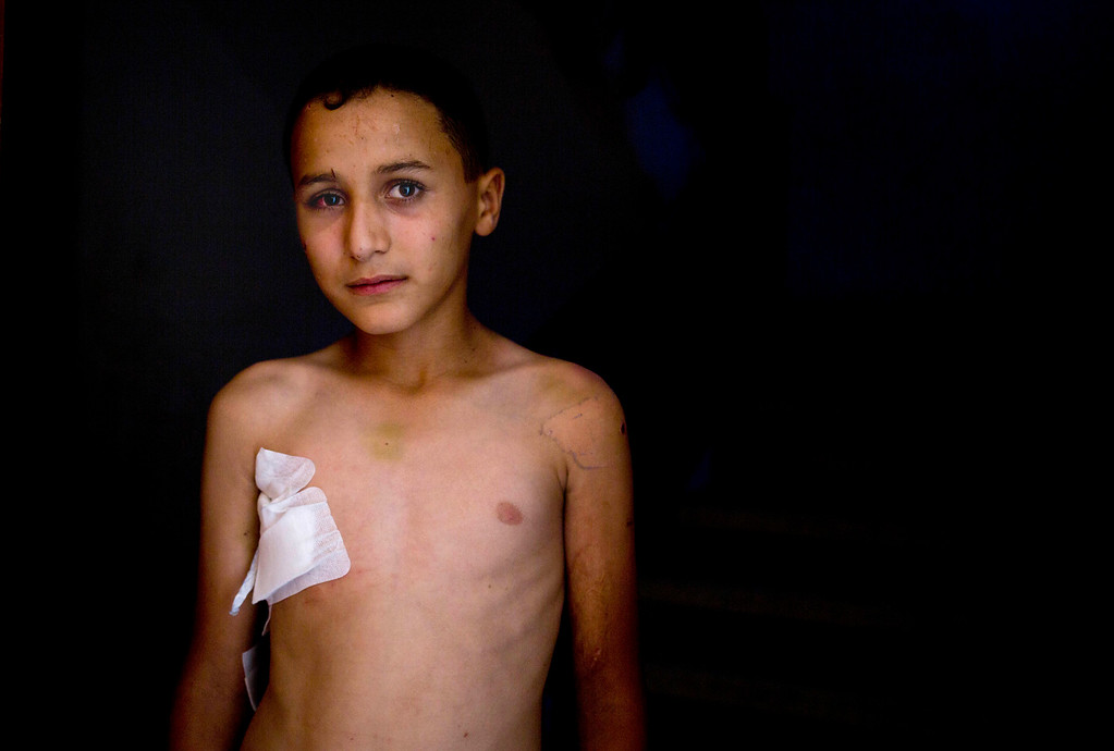 . This photo made on Wednesday, Aug 6, 2014 shows. 10-year-old Abdul-Qader Sahweel, who was wounded at UNRWA school on July 30, 2014, and suffered shrapnel wounds to his chest and eye, standing in his home in Gaza City. More than 9,000 Palestinians, the majority of them civilians and nearly a third among them children, have been wounded in the month long Gaza war. (AP Photo/Dusan Vranic)