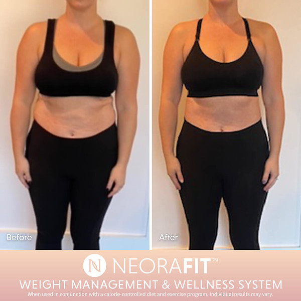 NeoraFit Real Results6.jpg