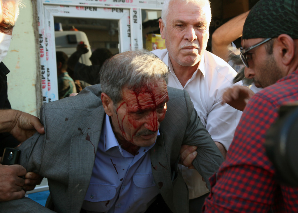 . People help a man, who was hit with a stone thrown by demonstrators, during clashes between Kurdish demonstrators and riot police in Suruc, Turkey, Monday, Sept. 22, 2014.  (AP Photo/Burhan Ozbilici)