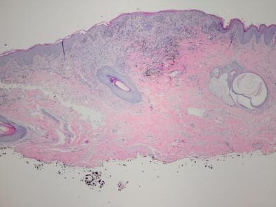 Anogenital melanoma