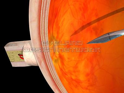 Radial optic neurotomy