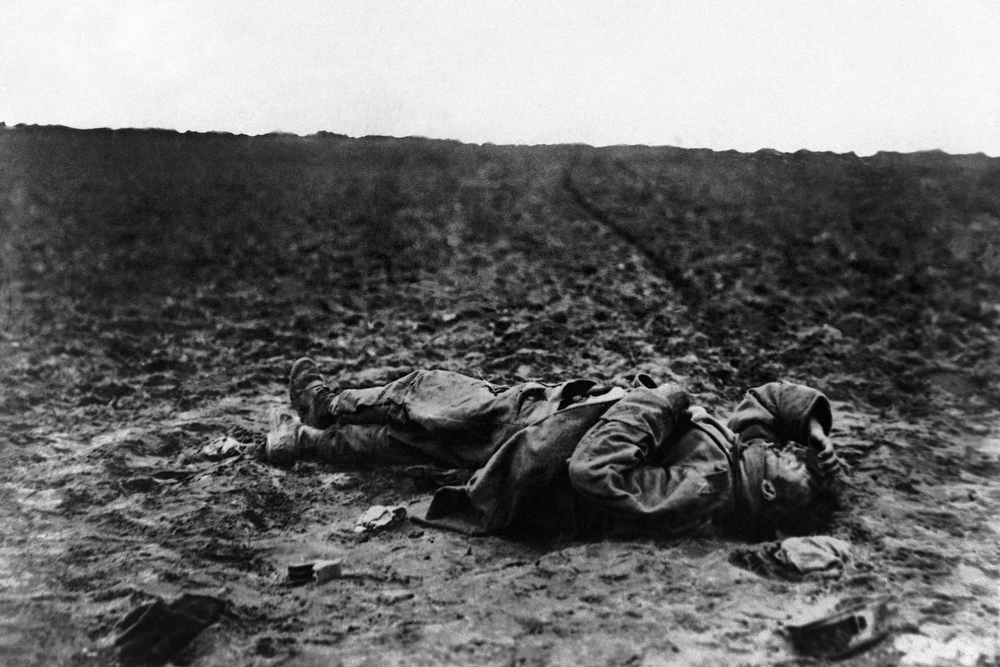Description of . A lone wounded Austrian soldier left on the field of battle during World War I in an undated photo. (AP Photo)