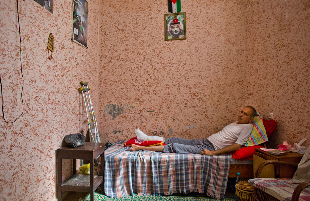 . In this photo made on Wednesday, Aug 6, 2014, Salah al-Sweiki, 63, wounded in his left leg on July 30 in an Israeli shelling on the Shijaiyah neighborhood, rests at his home in Gaza City. On the wall is portrait of Gaza\'s Hamas Prime Minister Ismail Haniyeh. More than 9,000 Palestinians, the majority of them civilians and nearly a third among them children, have been wounded in the month long Gaza war. (AP Photo/Dusan Vranic)