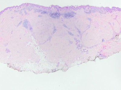Multiple melanomas