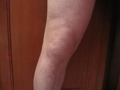 RT Knee Surgery Staff - 4/27/2012