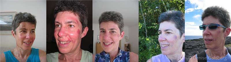 From left to right, the dates of these photos were June 4th (two days after my return home from the hospital), June 24th, July 25th (just before I headed out for a ride), September 19th, and October 26th (in the middle of a hike in Hawaii. Looks like I got bored with taking pictures of myself and skipped August entirely!