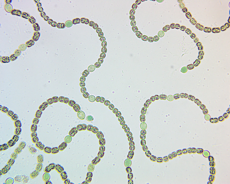 Dolichospermum