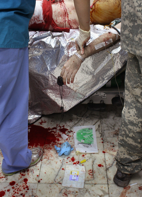 . A U.S. Army nurse takes the fading pulse of a dying American soldier at the 28th Combat Support Hospital September 22, 2007 in Baghdad, Iraq. The soldier was fatally wounded by a roadside bomb while on patrol in Baghdad. The hospital, located in Baghdad\'s Green Zone, received many of the nearly 30,000 U.S. soldiers wounded in Iraq. (Photo by John Moore/Getty Images)