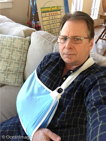 20170426 Arlington, VA. - Doug's Broken Collar Bone
