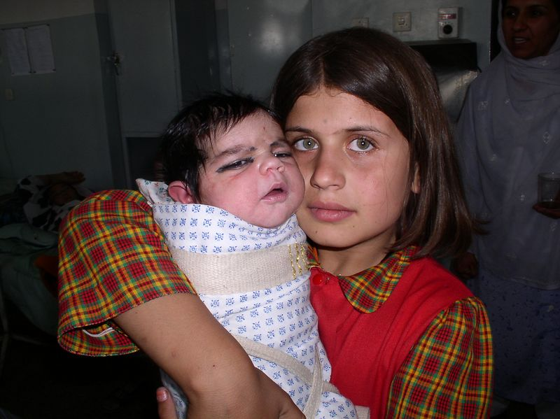Siblings. The little girl is just beautiful, typical Afghani genetics ! Her brother weighed in at 5 kg.