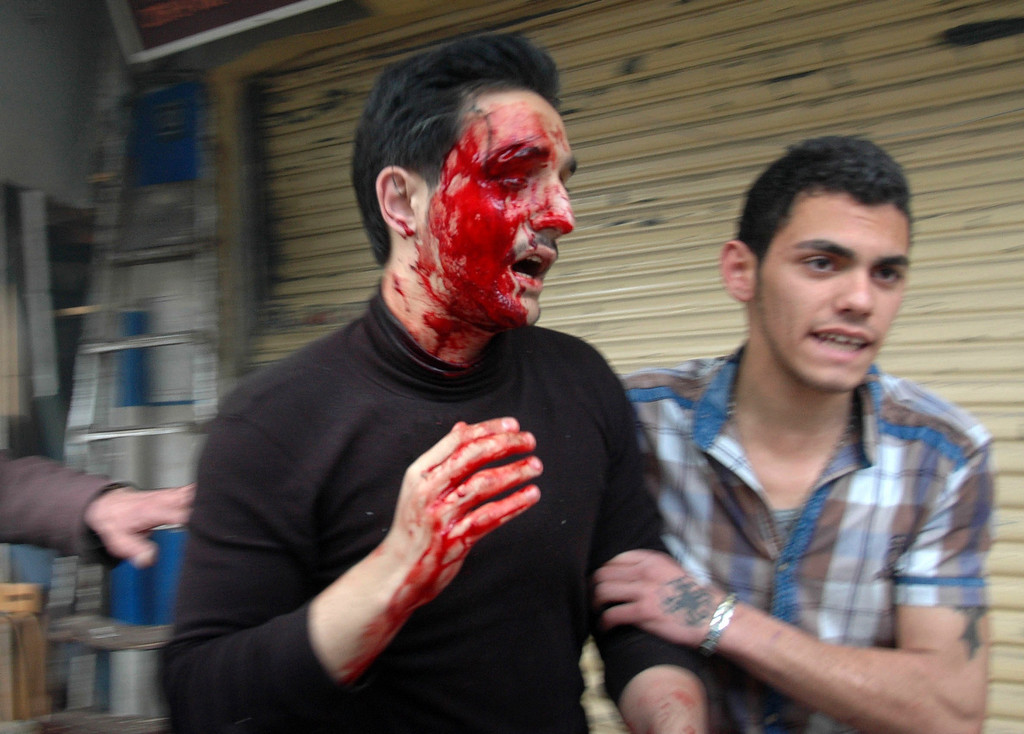 . A handout picture released by the official Syrian Arab News Agency (SANA) shows a wounded man at the scene of a car bomb explosion in al-Khudary Street in the Karm al-Loz neighbourhood of the central Syrian city of Homs on April 9, 2014. More than 150,000 people have been killed since the revolt began in March 2011 and nine million have been driven from their homes, including 2.6 million international refugees. (AFP PHOTO /HO/SANA)