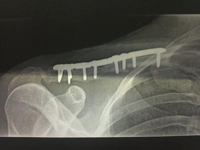 Broken Collar Bone 3-24-13