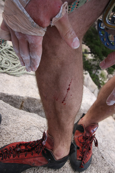 The damage after the climb. Rock climbing at Magnetic Island, Australia. Photo by Trent Williams