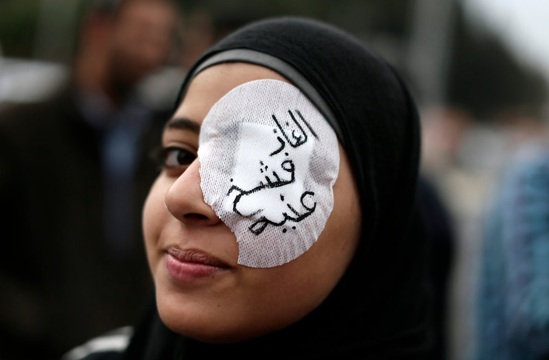 ". An Egyptian protester wears an eye patch during an anti Muslim Brotherhood demonstration outside the presidential palace, in Cairo, Egypt, Wednesday, Dec. 5, 2012. Supporters of Morsi and opponents clashed outside the presidential palace. Wednesdayís clashes began when thousands of Islamist supporters of Morsi descended on the area around the palace where some 300 of his opponents were staging a sit-in. Arabic on the eye patch reads, ""tear gas damaged my eye.\"" (AP Photo/Hassan Ammar)"