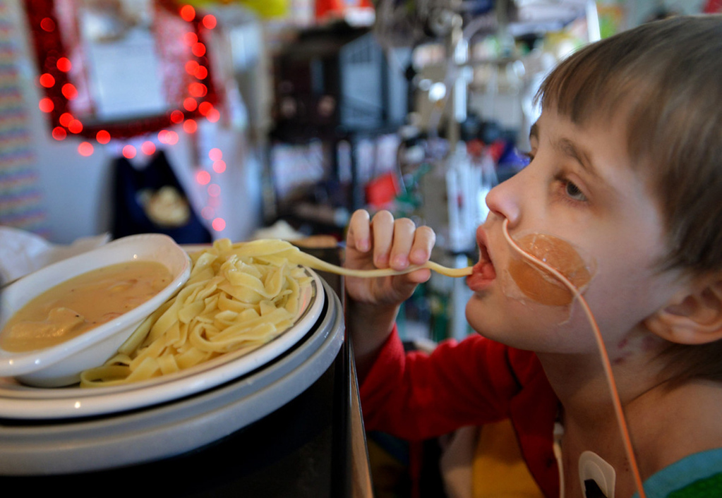 . Cameron Ulrich grabs a strand of fettucini alfredo, one of his favorite meals, in his room.   (Pioneer Press: Richard Marshall)