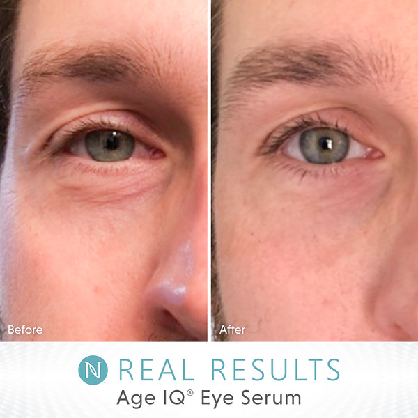 US-EN_Real-Results_AgeIQEyeSerum_6-19_MikeM.jpg