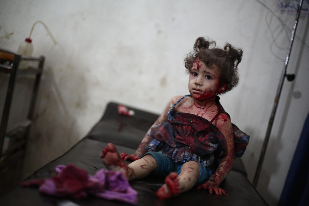 . An injured girl looks on as she is being treated at a makeshift hospital in the besieged rebel bastion of Douma, northeast of the Syrian capital Damascus, on September 24, 2014, following reported airstrikes by government forces. ABD DOUMANY/AFP/Getty Images