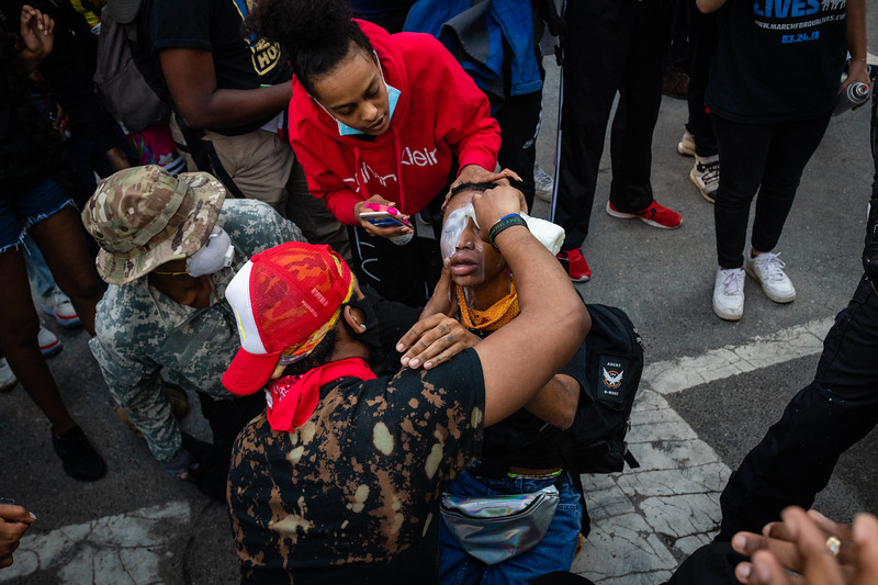 A medic pours milk over a protester's eyes to combat pepper spray in Washington, DC on May 31, 2020.