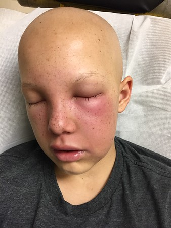 Cancer Treatment Videos 2014/15