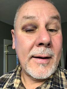 2018-11-15 Racquetball Racquet Black Eye